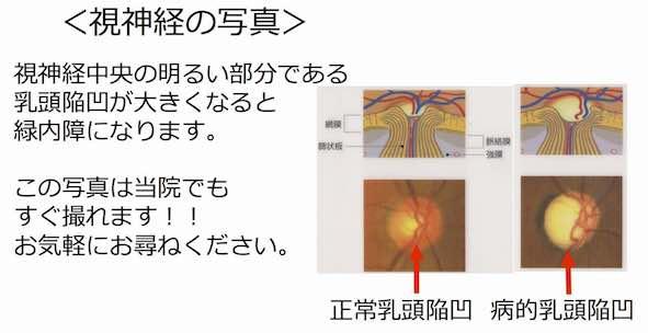 中待ち合い用プレゼンテーション2.jpg